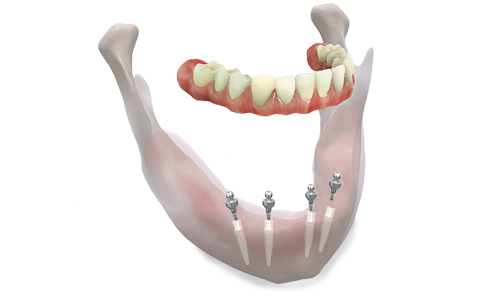 overdentures cabos dentistry