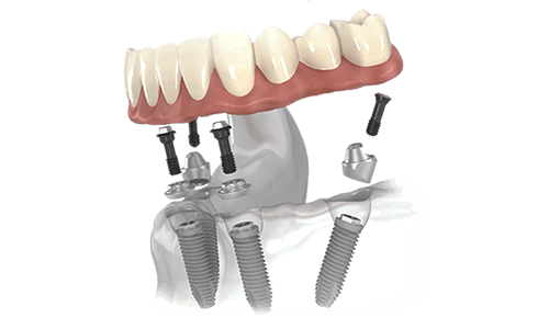 all on 4 dental implants in los cabos