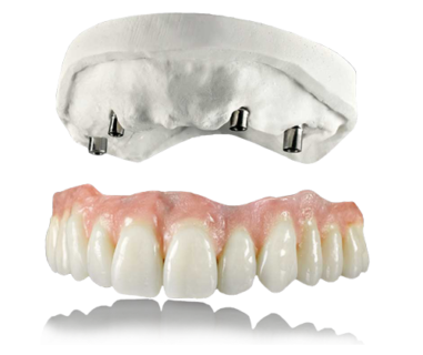 amp snap on dentures cabos