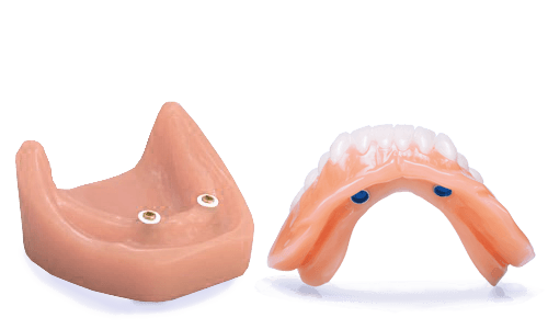 locators retained overdentures in los cabos