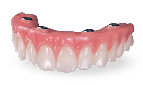 prettau bridge with dental implants