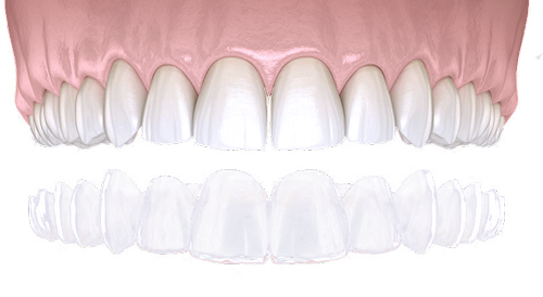 clear aligner mexico