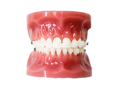 clear braces ceramic treatment acd