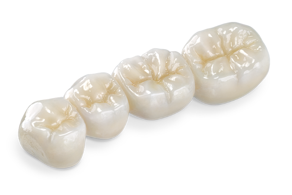 E-Max Porcelain dental crown in mexico