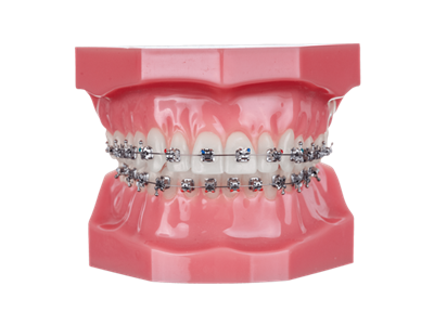 orthodontics metal braces in advanced cabo dentistry