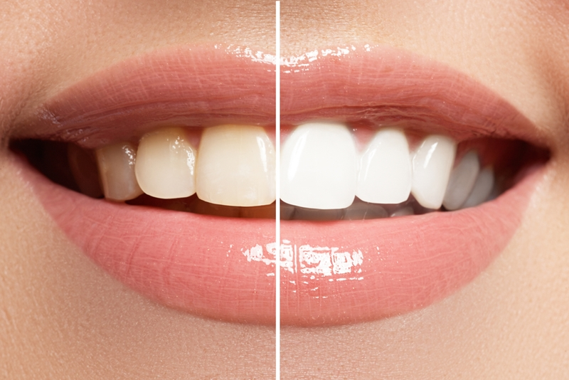 teeth whitening 100 USD in mexico